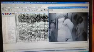 Un perro que detecta una crisis de epilepsia