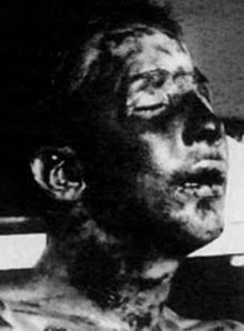El cadáver de Anteo Zamboni, poco después de ser linchado